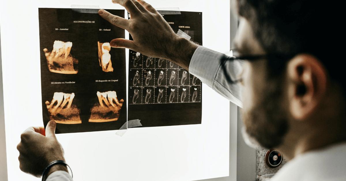 röntgen elemzés